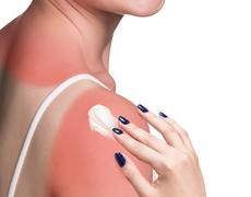 Sunblock on the shoulder of a young woman Stock Photos