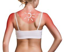 Cream on the shoulder of woman with sunburn - stock photo