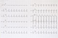 Top view of a complete electrocardiogram - stock photo