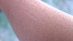 MACRO: Drastically dehydrated flaky layer of white skin on adult woman hand - stock footage