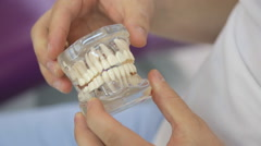 Doctor twists in hands of transparent dental model closeup Stock Footage