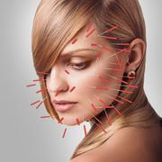Close-up of performing acupuncture therapy on face Stock Photos