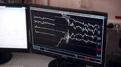 Unrecognizable doctor controls operation performing in hospital operating room - stock footage