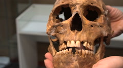 Anthropology. Skull Men Nomadic Sarmatian Age of 3000 Years in the Hands of the Stock Footage