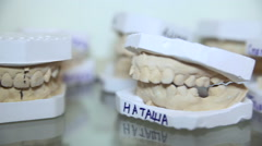 Casts for dentures - stock footage