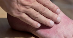 Applying soothing lotion to a man's sunburned foot 4K - stock footage
