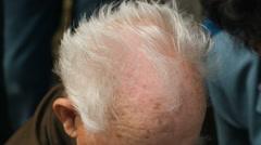 Balding Head of old man Stock Footage