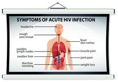 Chart showing symptoms of acute HIV infection Stock Illustration