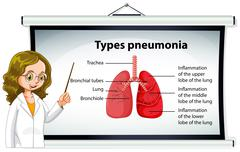Doctor explaining types of pneumonia Stock Illustration
