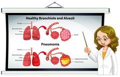 Doctor explaining healthy bronchiole and alveoli Stock Illustration