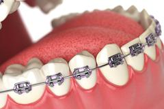 Teeth with braces or brackets in open human mouth. Dental care concept. - stock illustration