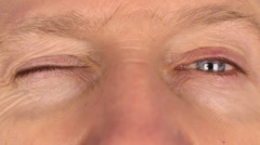 Closeup man rapidly blinking eyes Stock Footage