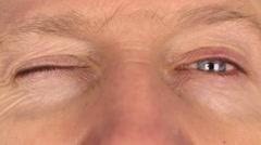Closeup man rapidly blinking eyes - stock footage