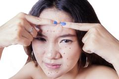 Teenage girl squeezes acne on her forehead - stock photo