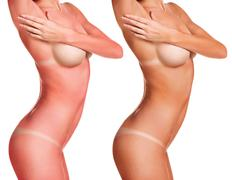 Sunburn female naked body Stock Photos