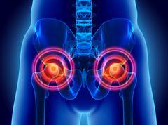 Hip painful skeleton x-ray, 3D illustration. Stock Illustration