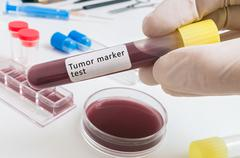Scientist holds test tube with tumor marker test for patient with cancer. - stock photo