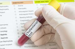 Hand of researcher in laboratory holds test tube with blood for Cholesterol t Stock Photos