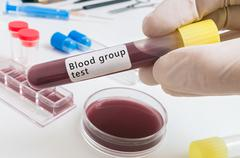 Hand of scientist holds test tube with blood for Bloof group test. Stock Photos
