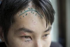 Scar on the head Stock Photos