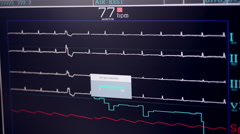 Real Heart beat pulse Stock Footage