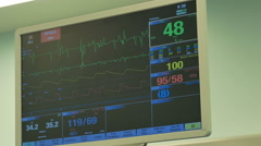 ECG Monitor in Operating Theater Stock Footage