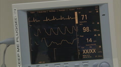 EKG monitor health heart medicine doctor Stock Footage