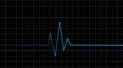 Electrocardiogram. Heartbeat waves Stock Footage