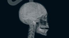 X-ray of electrocuted head. Stock Footage