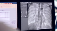 Ultrasound of a Real heartbeat. Ultrasonic examination on computer screen Stock Footage