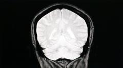 MRI brain scan on black background - stock footage