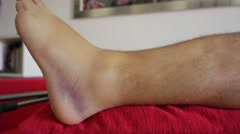 Injured ankle dolly shot Stock Footage