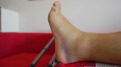 Injured ankle with hematoma Stock Footage