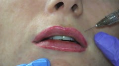 Increase Lips Hyaluronic Acid Stock Footage