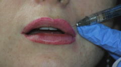 Procedure Augmentation Lip Stock Footage