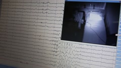 Monitor EEG graph with a view room with girl and flashes of light Stock Footage