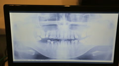 Computer screen shows a panoramic x-ray image of teeth and jaw Stock Footage