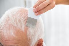 Close-up Of Doctor Doing Treatment On Senior Patient's Hair With Comb Kuvituskuvat