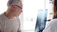Doctor with spine x-ray and senior man at hospital 75 Stock Footage