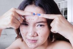 Teenage girl touching acne Stock Photos