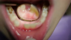 Dentist diagnoses Stock Footage
