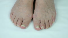 Fungal infection on nails of foot Stock Footage