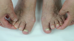 Toenails of woman with fungal infection Stock Footage