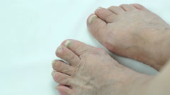 Fungal infection on nails of person's foot Stock Footage