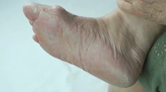 Woman's feet has fungal infections of toenails Stock Footage