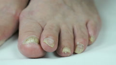 Fungus infection on toenails of female's foot Stock Footage