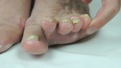 Onychomycosis. Fungal infection of toenails Stock Footage