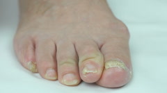 Fungus infection nails of person's foot Stock Footage