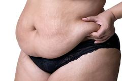 Fat female belly after pregnancy, stretch marks closeup Stock Photos
