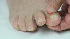 Woman's feet with fungal infections of toenails Stock Footage